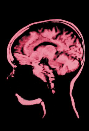 Skull & Brain